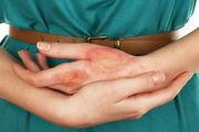 Что такое нервная экзема и как ее лечить