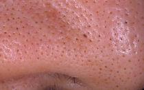 Угри на носу: методы очищения кожи