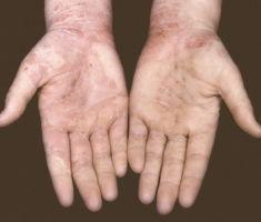 Микотическая экзема, как распознать и лечить заболевание
