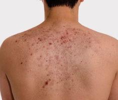 Почему появляются угри на спине у мужчин и как их убрать?