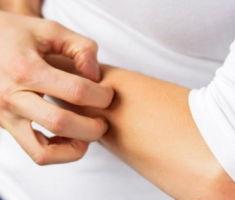 Чем дерматит отличается от экземы