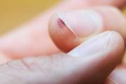 Бородавка под ногтем: причины появления и лечение