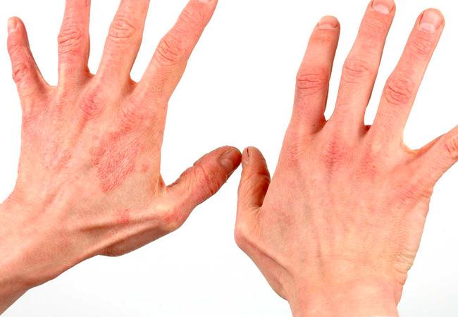 Псориаз фото симптомы и лечение у взрослых и детей, мази и дома