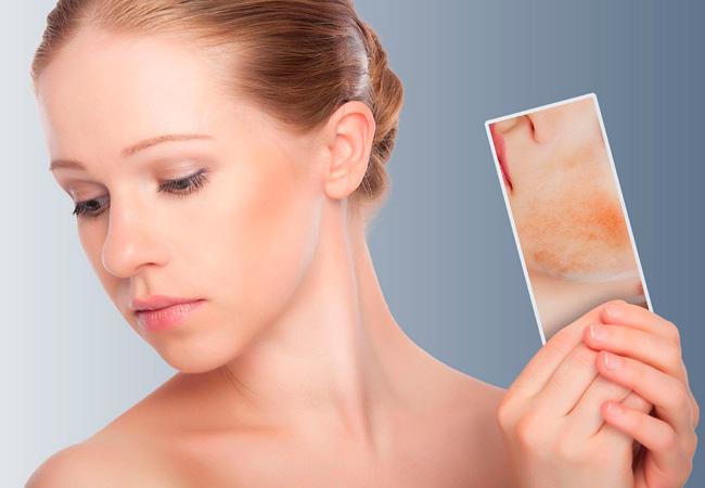 Контактный дерматит чем лечить