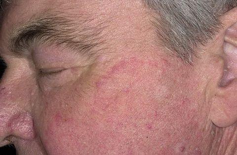 Проявление псориаза на лице