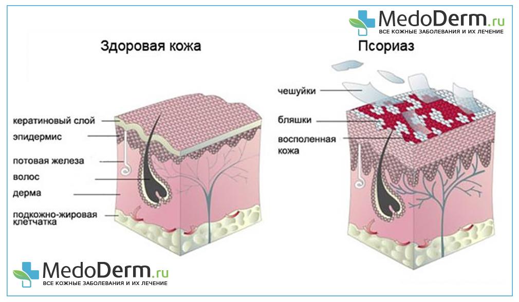 Что такое псориаз Как он проявляется и как его лечить