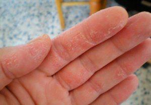 Лечение экземы на руках в домашних условиях