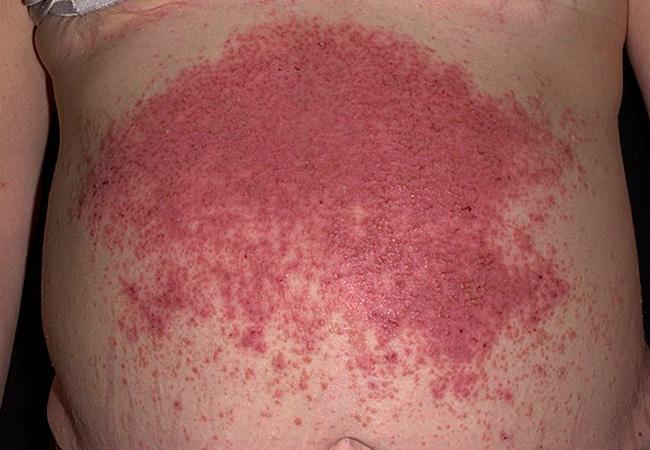 Герпетический везикулярный дерматит у детей и взрослых: лечение