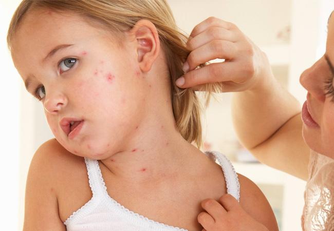 Атопический дерматит у детей симптомы причины лечение
