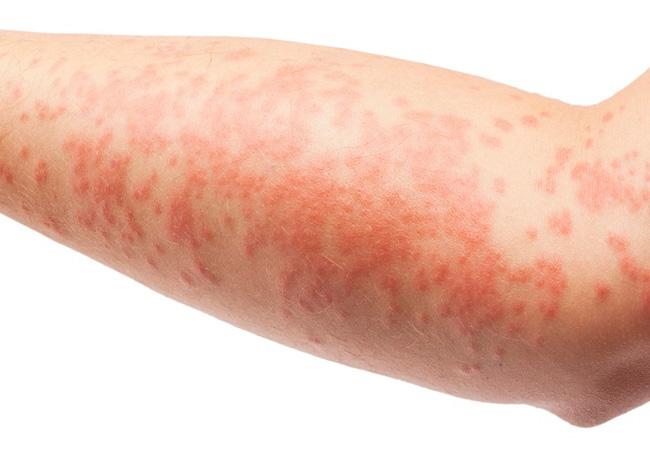 Откуда берется дерматит