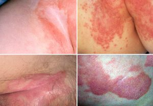 Пример пахового дерматита у мужчин