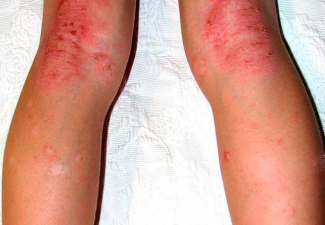 виды аллергий на ногах и руках фото