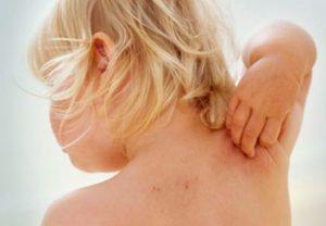 Стадии атопического дерматита