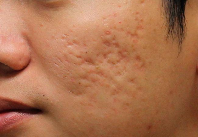 Угри на лице - лечение в домашних условиях без врача самому
