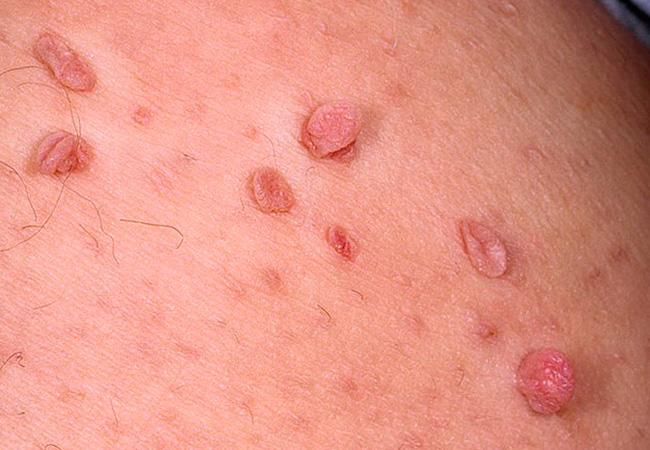 Папилломы - причины, симптомы, лечение, фото