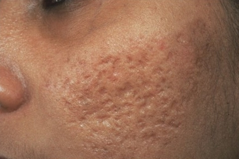 Как убрать рубцы (шрамы) от прыщей на лице