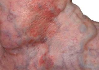 Варикозная экзема нижних конечностей лечение