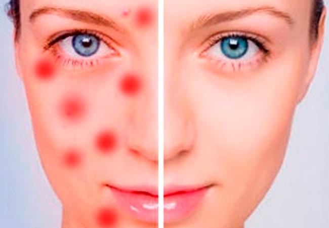 Антибактериальные мази для кожи - Красоткам