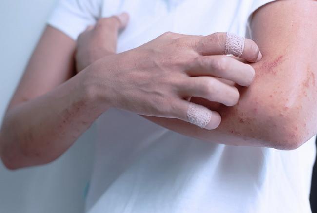 Аллергическая экзема на лице