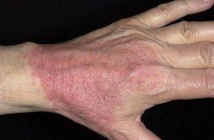 Атопический дерматит экзема нейродермит что это thumbnail