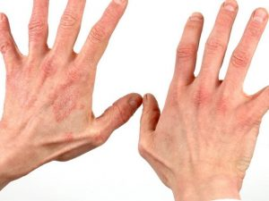 дерматит и другие названия thumbnail