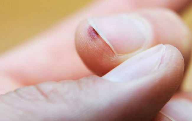Нарост на пальце руки возле ногтя