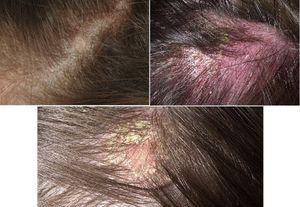 Лечение дерматита головы народными средствами